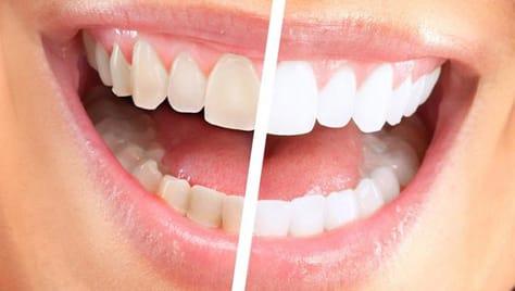 Ослепительная улыбка! Профессиональное отбеливание зубов по программе «Премиум» в студии «Smile Bar» (Смайл Бар) со скидкой до 61%!