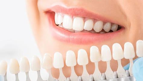 Ослепительная улыбка! Профессиональное инновационное осветление зубов до 6 тонов от салона «White-n-Smile» (Вайт смайл) со скидкой до 53%